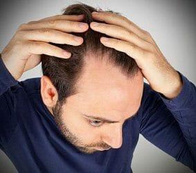 mężczyzna łysieje